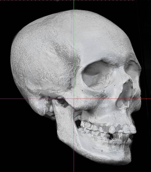 Skull Reconstruction Of Lilias Adie