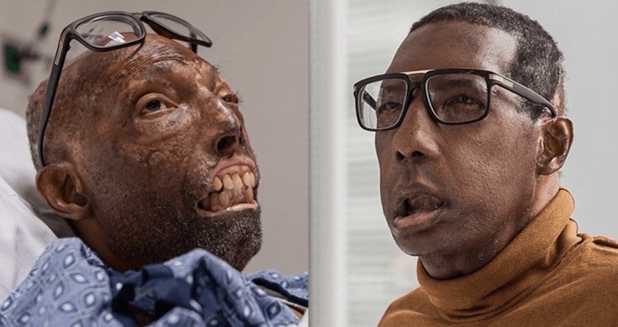 first-african-american-face-transplant-1.png