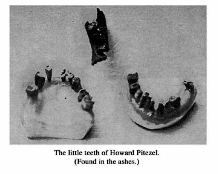 Howard Pizetel Teeth And Jawbone