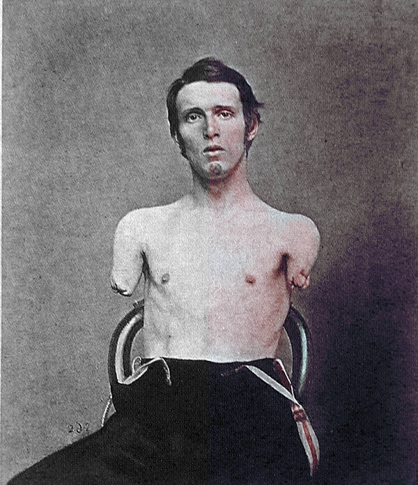 Colorized Photo Of Civil War Amputee