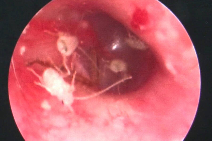 Cockroach Mother Inside Man's Ear