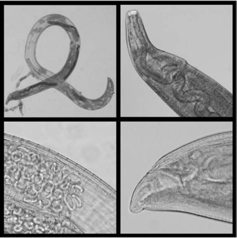 Parasitic Eye Worm