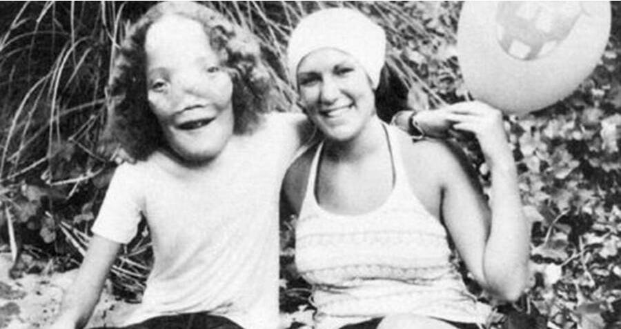 The Vibrant Life Of Rocky Dennis, The Boy Whose Rare Deformity Inspired The Film 'Mask'