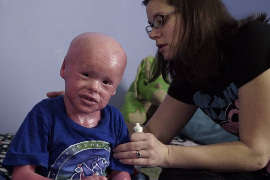Boy With Harlequin Ichthyosis