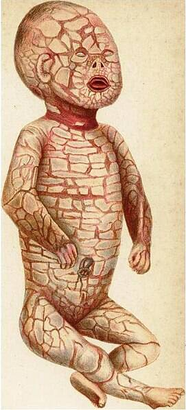 Harlequin Ichthyosis Illustration