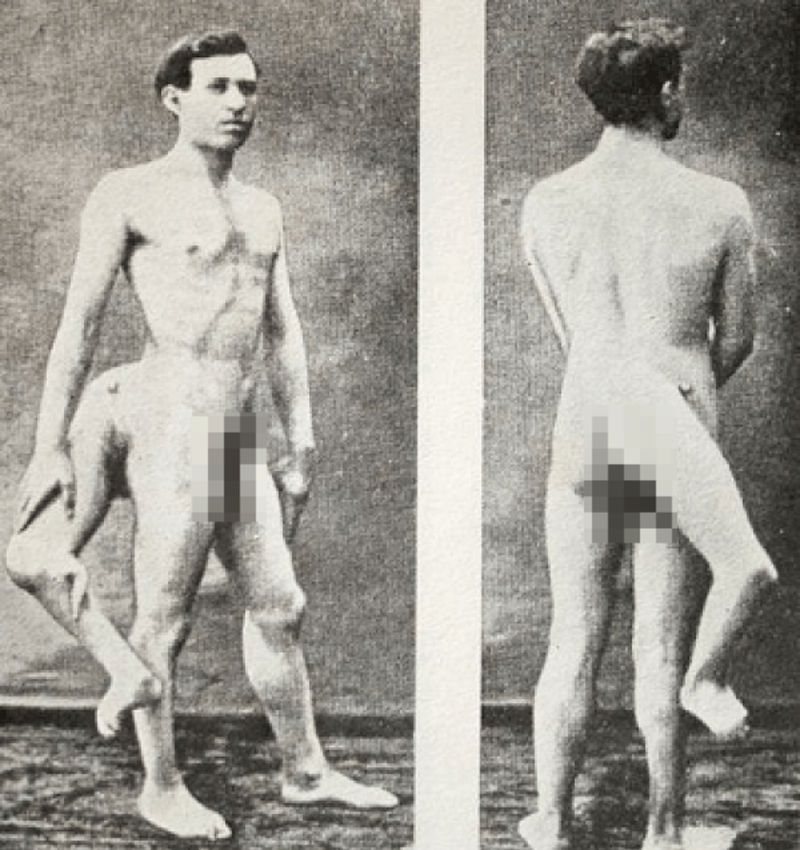 Lentini Nude