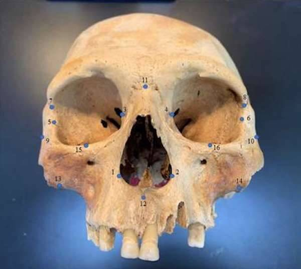 Early Caribbean Settler Skull