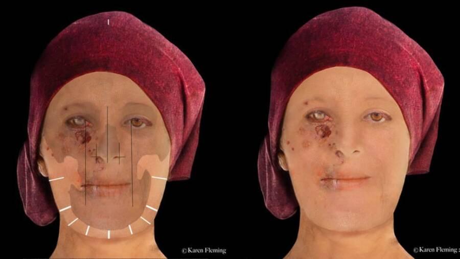 Face Of Scottish Leprosy Victim