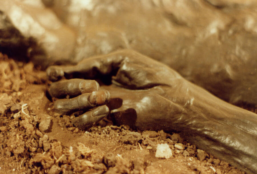 The Soft Hands Of The Grauballe Bog Body