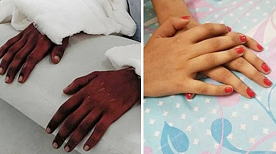 Hand Transplant Changing Skin Color