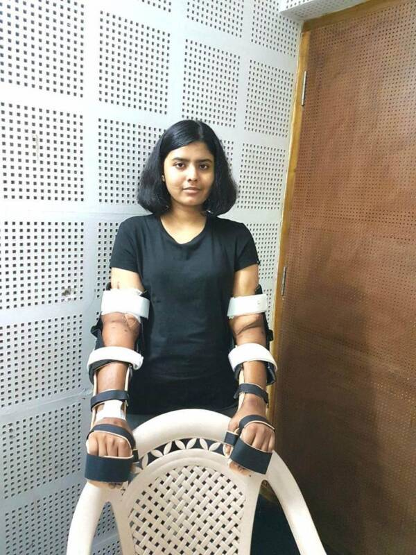 Shreya Siddanagowda And Her New Hands