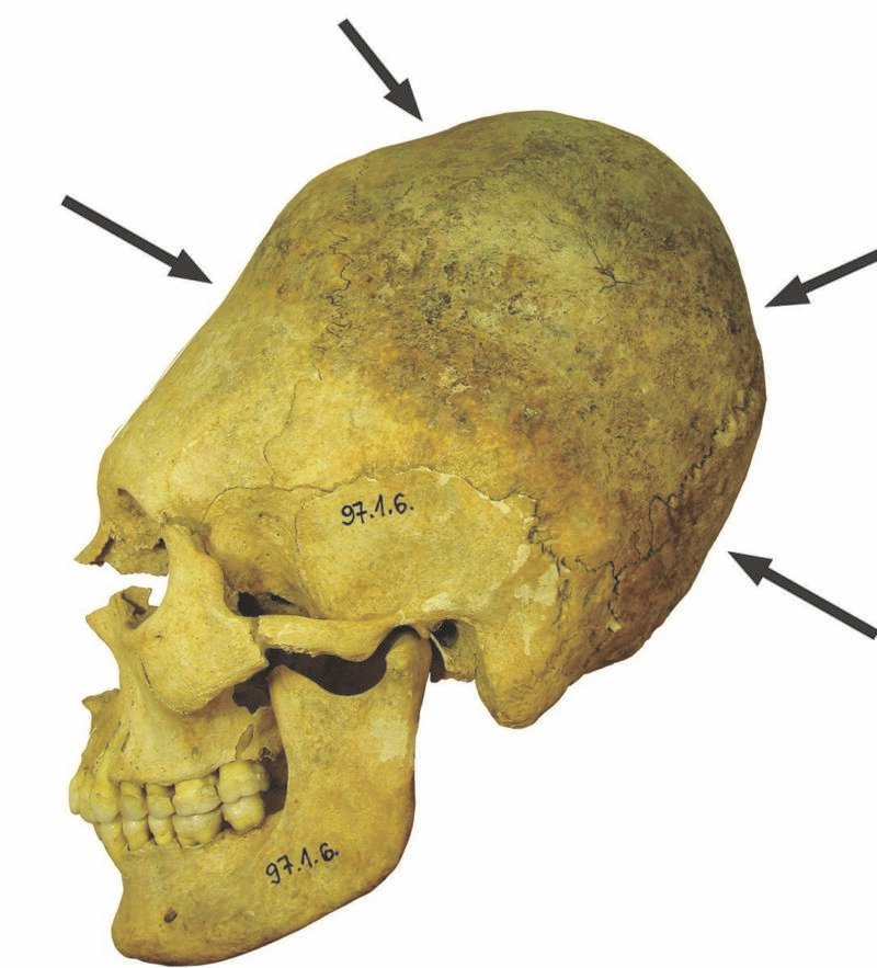 Deformed Skull From Mözs Icsei Dülö