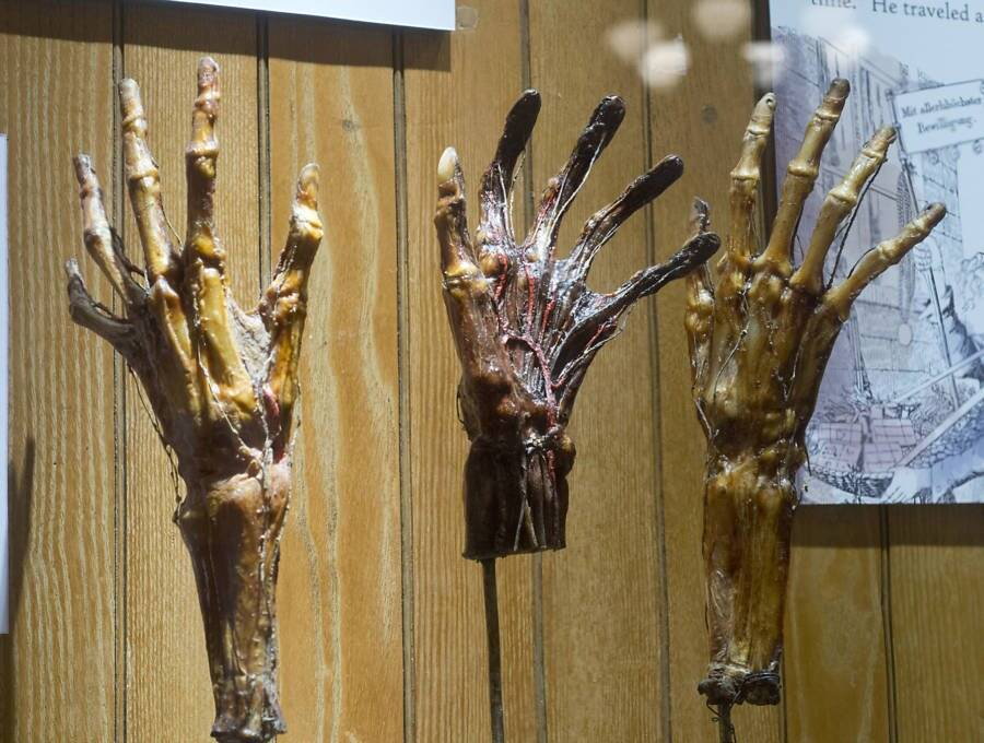 Dried Hands From Mutter Museum