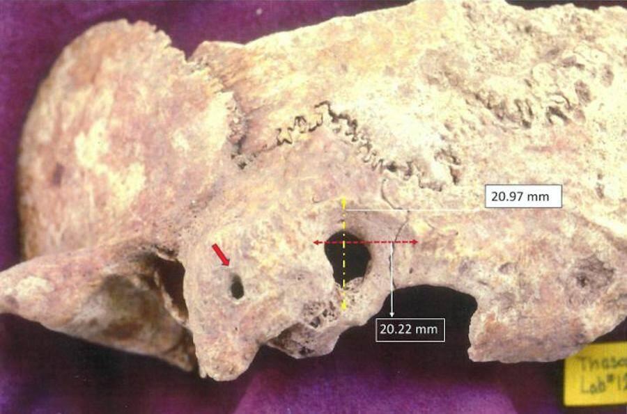Ectocranial View Of Ancient Greek Skull