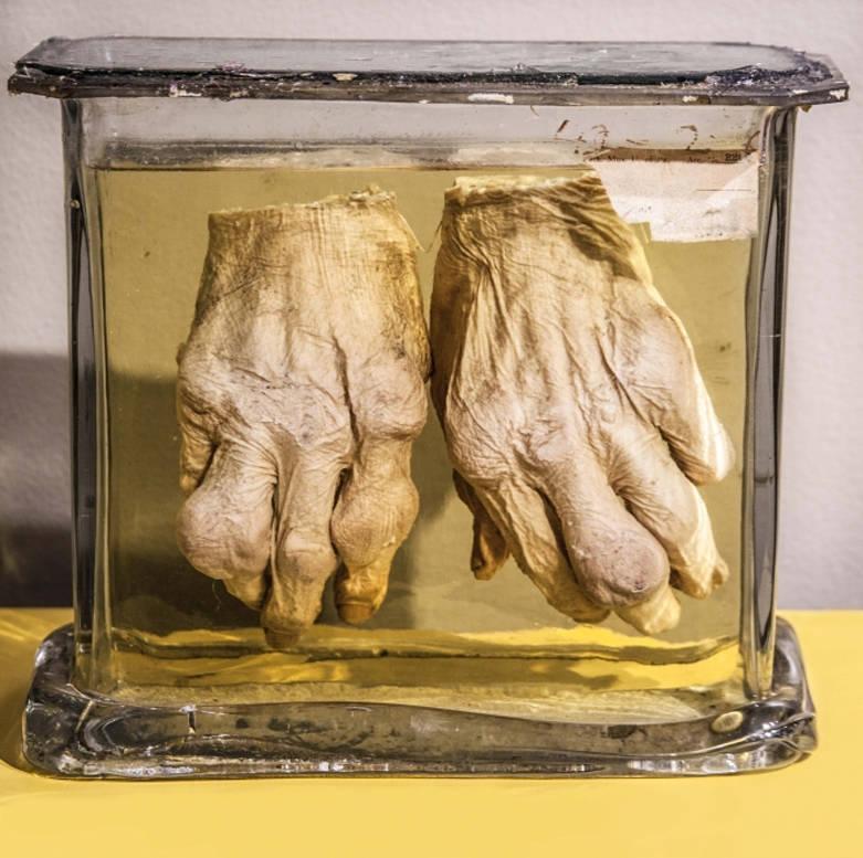 Gout Hands Jar