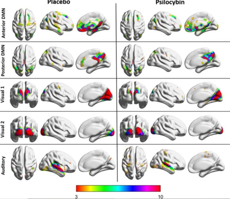 Mushroom High Brain Scans