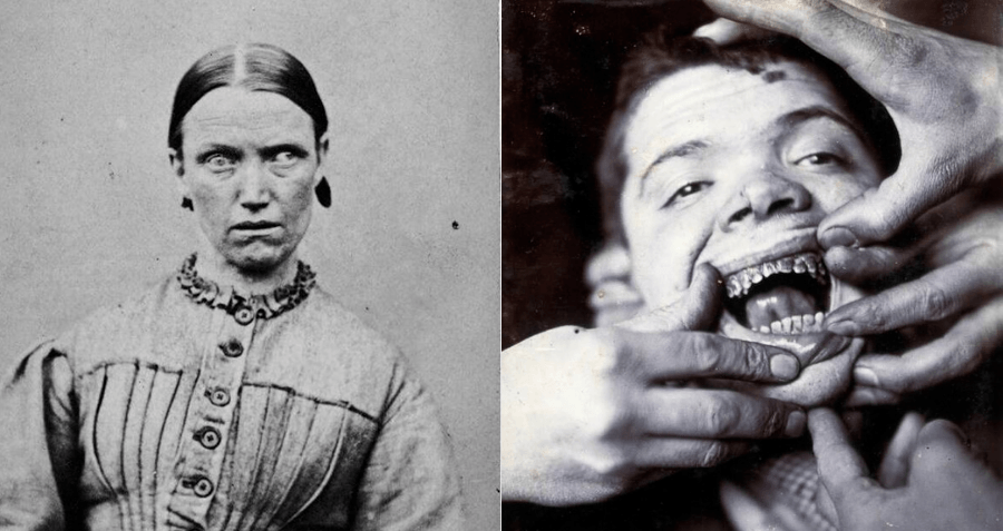 These 9 'Insane Asylums' From The 19th Century Are The Stuff Of Nightmares