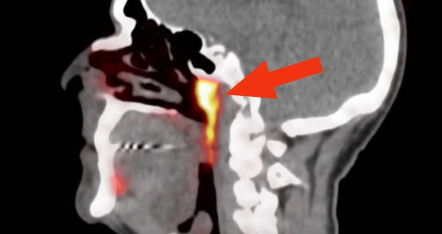 Scientists Just Accidentally Found A New Organ Hidden Inside The Human Head