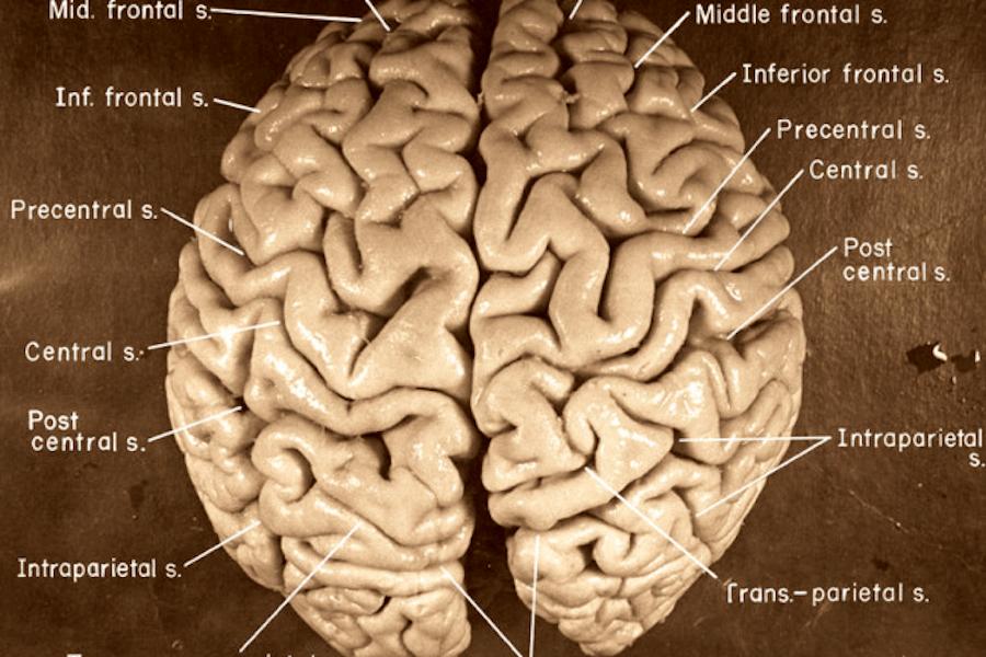 Albert Einstein Brain
