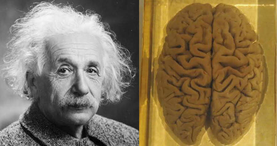 Inside The Death Of Albert Einstein — And The Bizarre Theft Of His Brain