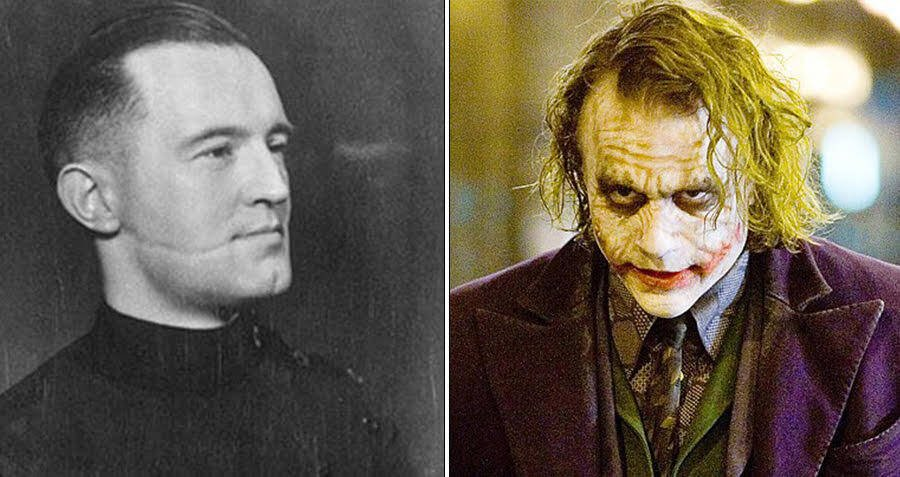 How A Torture Method Used By Scottish Gangs Inspired The Terrifying Scars On The Joker