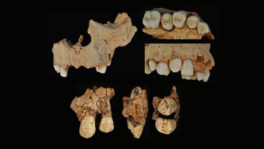 Boy Of Gran Dolina Tooth Fragments