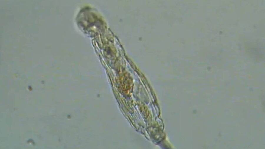 Bdelloid Rotifer After Thawing