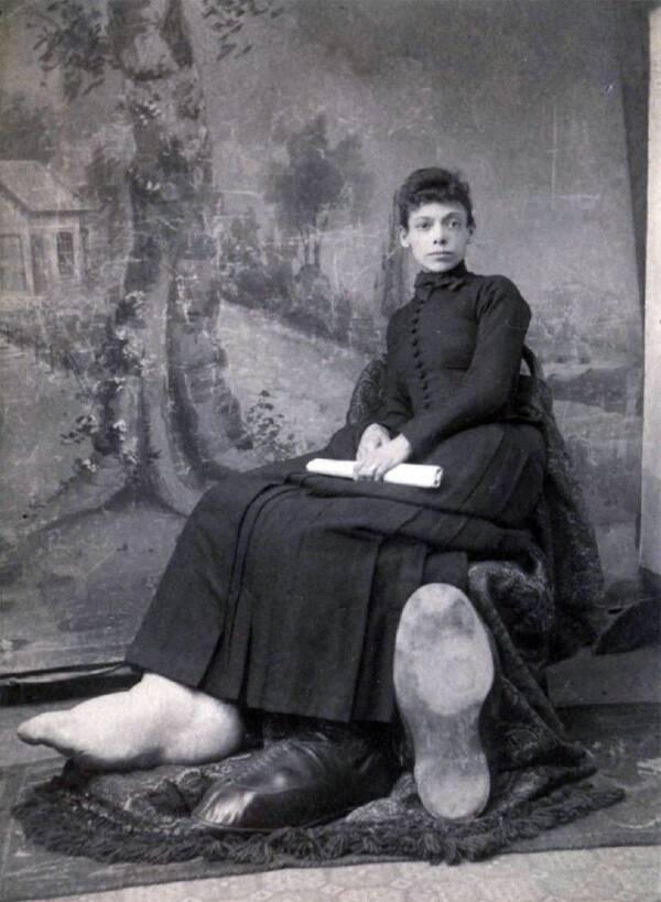 Fanny Mills One Shoe Off