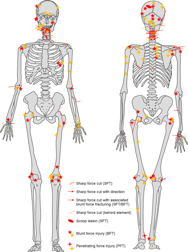 Injuries On Skeleton