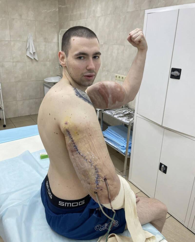 Kirill Tereshin After Surgery